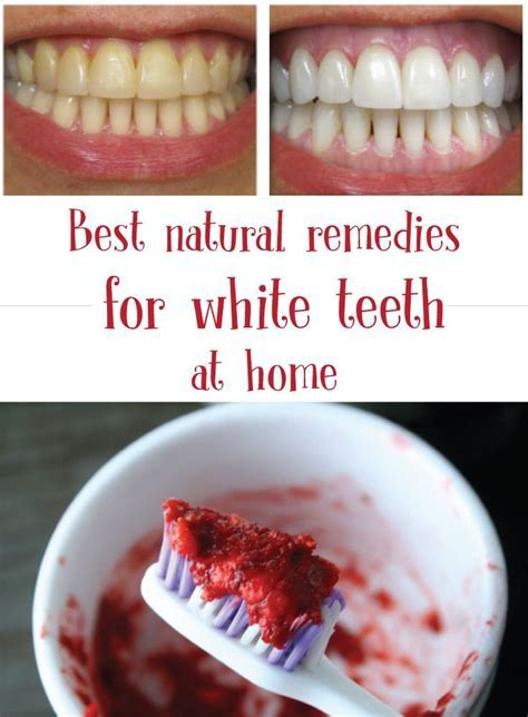 White teeth   Best natural remedies for white teeth at