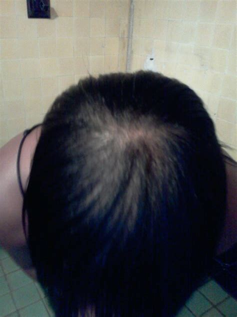 balding hair crowns hair extensions for balding crown short hairstyle 2013