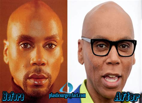 Detox Rupaul Plastic Surgery by Rupaul Plastic Surgery Before And After Photos