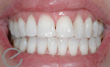enlighten teeth whitening colchester   hollywood