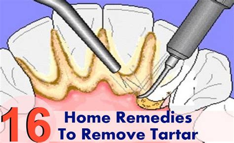 16 amazing home remedies to remove tartar diy health remedy