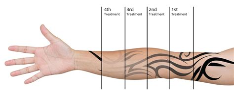 is it possible to remove a tattoo laser removal asaparc digest