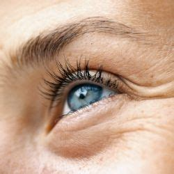 Krim Kantung Mata 5 sebab mata berkantung dan berwarna hitam