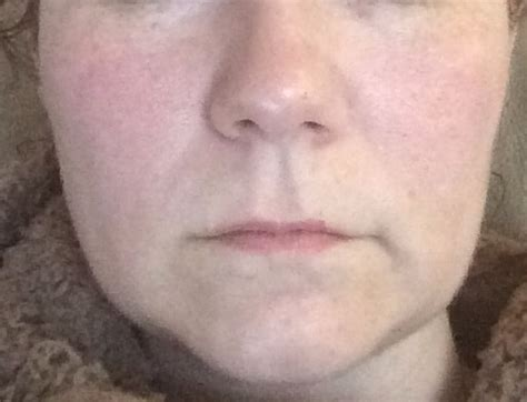 sagging jowls trick 1 face exercises to lose face fat with jowls j is for jowl to whine and moan about my hot