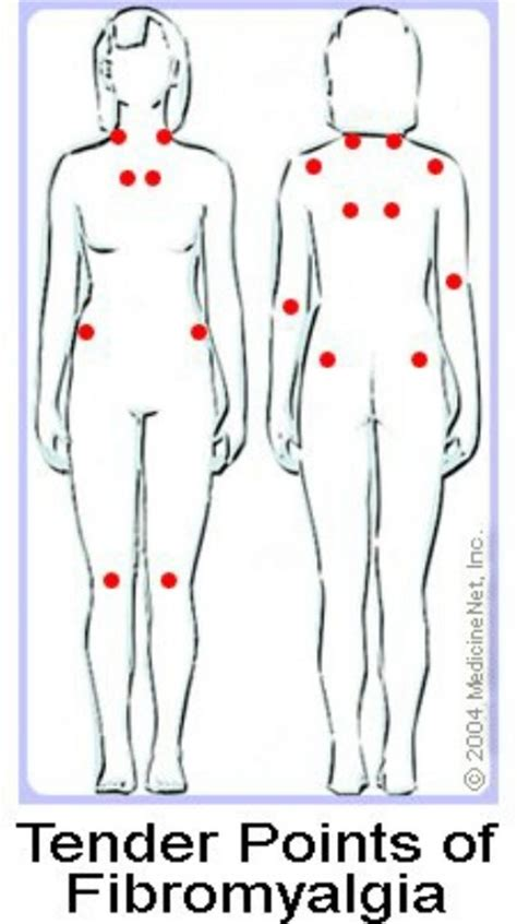 fibromyalgia tender points diagram tender points me and my fibromyalgia
