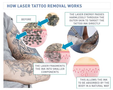 how does tattoo removal work laser removal by