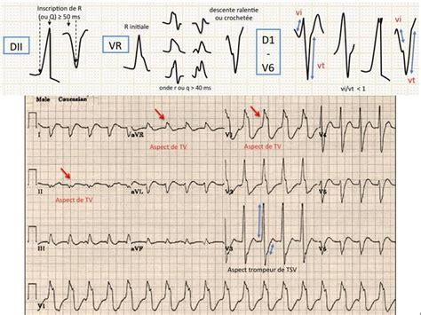 tachycardies supra ventriculaires et ventriculaires et