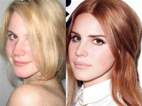 Where To Buy Fake Tattoos That Look Real by Lana Del Rey Plastic Surgery Before And After Photos