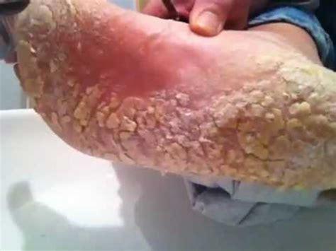 Skin Shedding Disease by Cracked Foot Skin