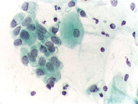 pap test metaplasia file pap test endocervical cells jpg wikimedia commons