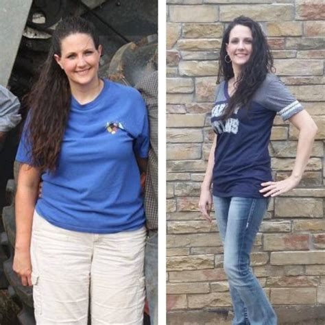 weight loss surgery my gastric band nearly killed me losing weight before lap band surgery lose weight tips