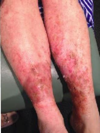 Arm Detox With Hives by Addressing Severe Eczema With Sva A Study Shaka