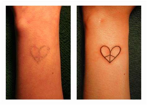 madi s peace heart tattoo repair by dadenko on deviantart