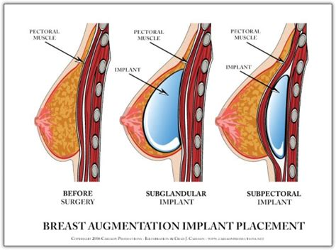 self breast diagram industry media page 2