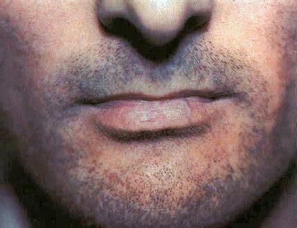 scarring alopecias pt  lichen planopilaris