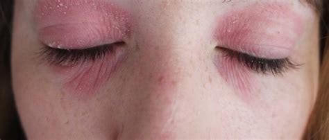 image gallery eye eczema