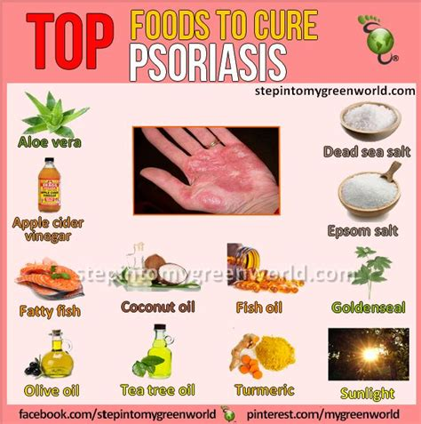 25 best ideas about psoriasis remedies on