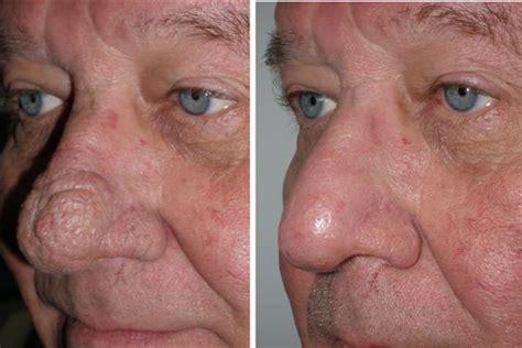 nose treatment nose surgery richmond va rhinoplasy nose rhiniophyma