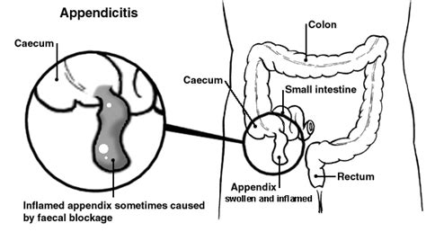 appendix diagram appendicitis symptoms patient co uk