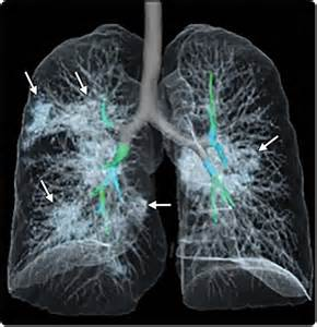 chest ct shows covid  damage   lungs