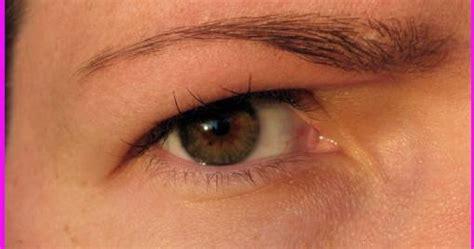 Eyebrows Treatment Paket 2 itchy eyebrows symptoms treatments
