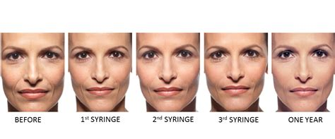 juvederm ultra plus forever young bbl photfacial evolvmd