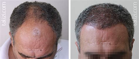 how thick is 1000 hair graft transplant of long hair in talizi