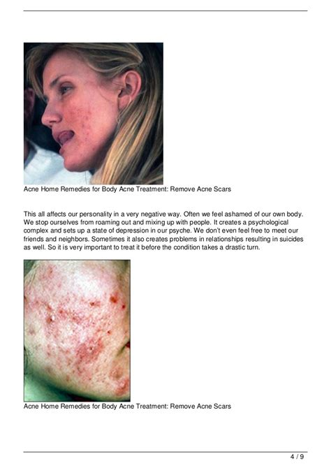 Home Decor Stores Richmond Va home remedies for acne scars 28 images home remedies