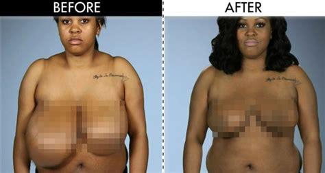 by nature before and after botched wanita ini punya payudara besar sebelah ini yang perlu
