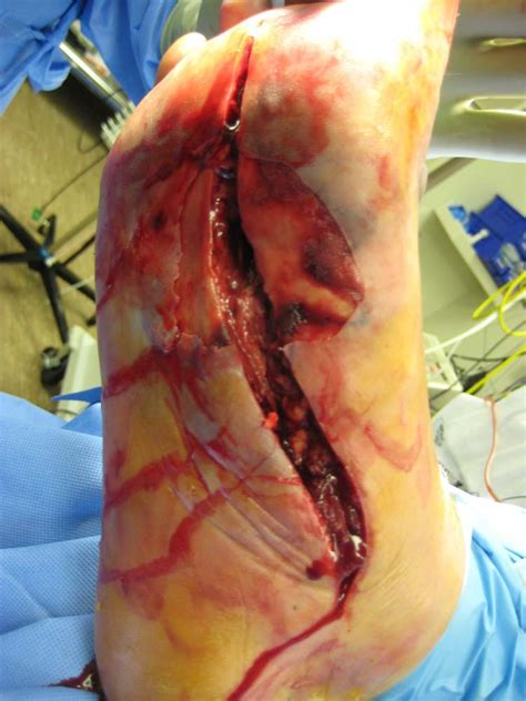 mrsa c section necrotizing soft tissue infection of the foot a case