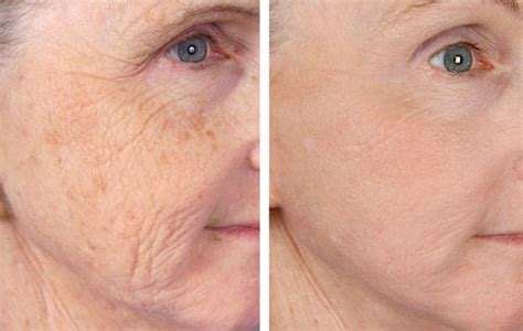 fractional laser resurfacing atlanta alpharetta