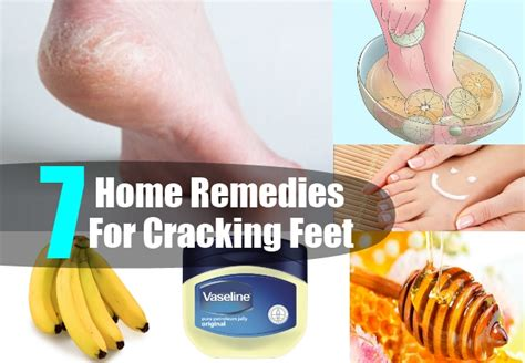 home remedies for cracking