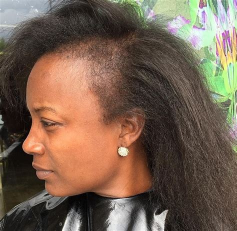 growing out a bad perm how to avoid damage from hair extensions highlife