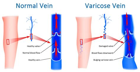 8 Symptoms Of Varicose Veins by Varicose Veins Can Lead To Deadly Blood Clots If Left
