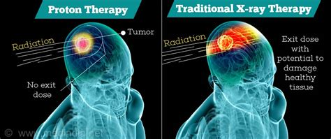 Proton Beam Radiation Therapy by Proton Beam Therapy For Cancer Treatment