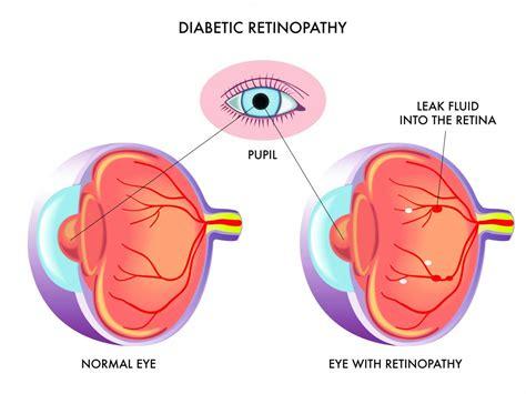 diabetic retinopathy eye day clinic