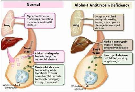 alpha definition easy definition alpha 1 anti trypsin deficiency information pinte