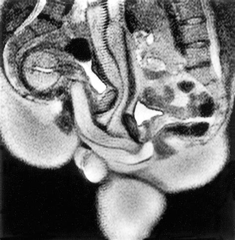 cross section intercourse magnetic resonance imaging of male and female genitals
