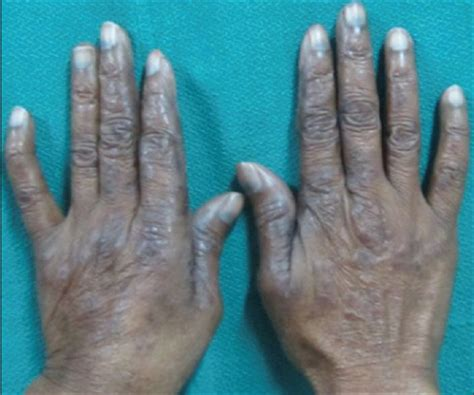bluish coloration of the skin atypical of foot due to pegylated