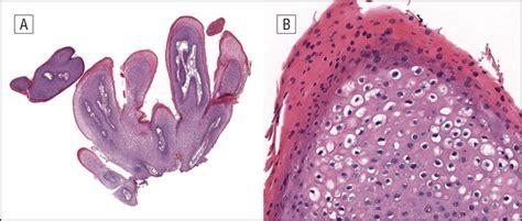 condylomata   pannus   obese patients   location   common disease obesity