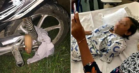 Alat Tes Kehamilan Malaysia baju terjerat roda sepeda motor tangan gadis ini putus