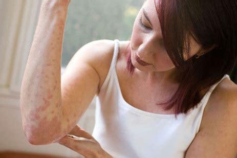 Bed Bugs Bites Remedy Tener Alergia Durante El Embarazo Buena Salud