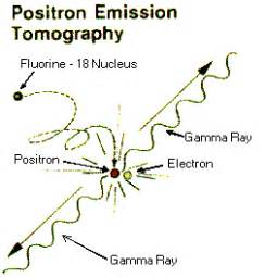 Proton Emission Tomography Physiology Physics Woven Pet Scan Particle Physics