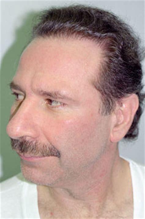 mens haircuts edison nj hair transplant repair in edison new jersey nj dr