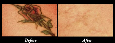 tattoo removal news laser removal