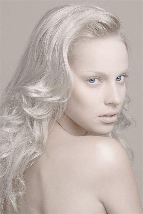 what color are albinos serie model iti mua bruneau hair