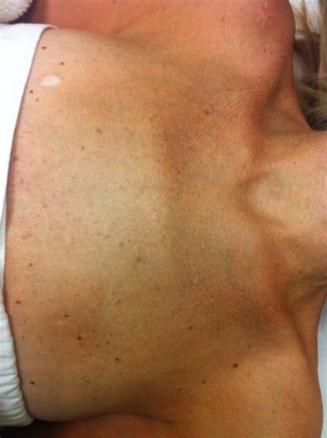 light brown spots on skin best 25 brown spots on skin ideas on brown