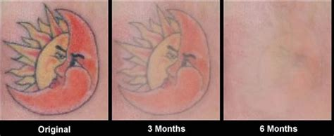 tattoo cream before before and after photos of tattoo removal cream