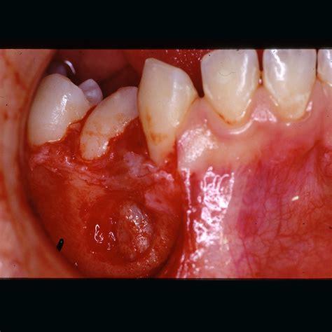 casi clinici casi clinici chirurgia