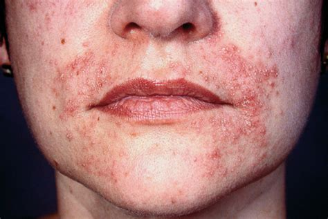 scar removal cream for african americans how to get rid of pimples scars in two days xbox